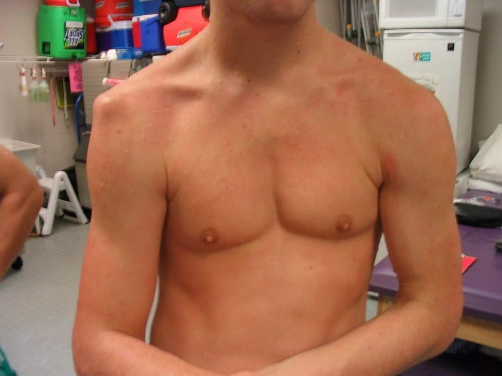 Выпадение плечевого сустава как лечить коленные суставы яблочным уксусом