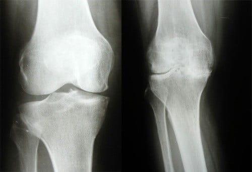Диагностика коленного сустава где пройти