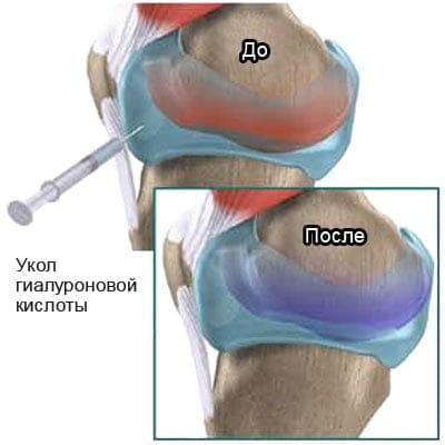 Гиалуроновая кислота инъекции в сустав цена проблемы с височно челюстным суставом