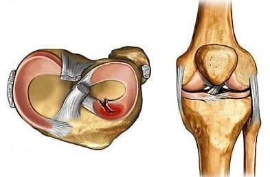 закрытые повреждение коленного сустава