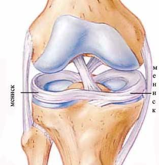 Консервативное безоперационное лечение разрывов менисков коленного сустава надкопытный сустав 5 букв сканворд