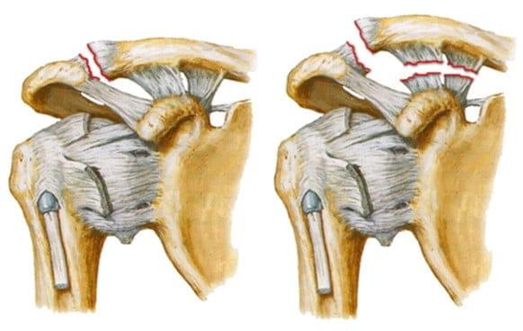 выбить плечевой сустав
