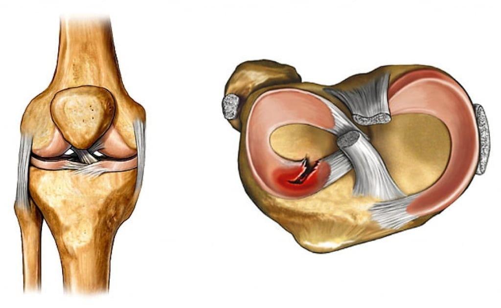 Задний рог латерального мениска коленного сустава