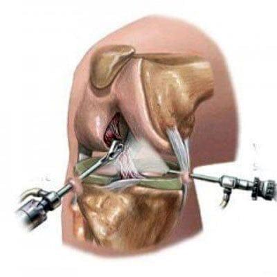 как делается операция на коленный сустав