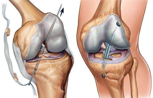 где сделать операцию связки коленного сустава