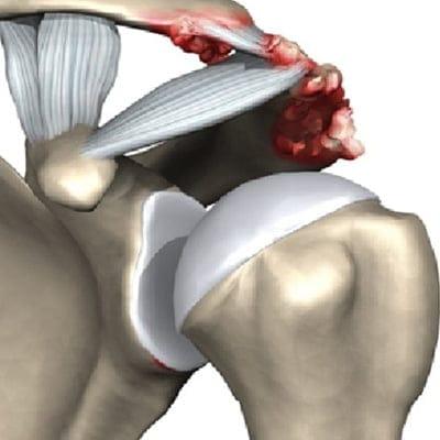 ключично-акромиальное сочленение плечевого сустава