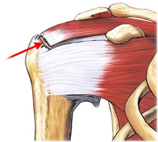 отзывы после артроскопии коленного сустава