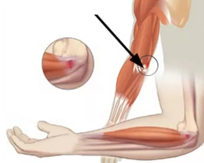 Наружный эпикондилит локтевого сустава лечение