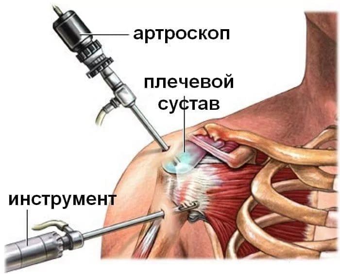 Изображение - Лечение плечевого сустава после травмы i6