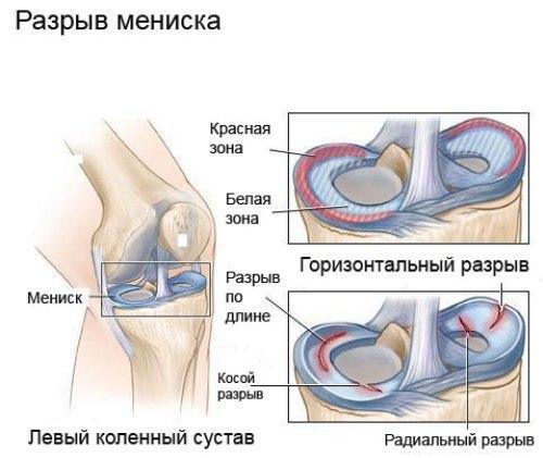Изображение - Разрыв медиального мениска коленного сустава 3 степени 031659e5084c0d038cc44a7a163caf4f