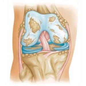 Изображение - Артроз коленного сустава операция 25644aae132ae626c6d3bbd21a268343