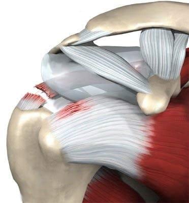 Изображение - Разрыв сухожилия плечевого сустава операция отзывы 4050d957d628d9bd40d83b48f6db67a8