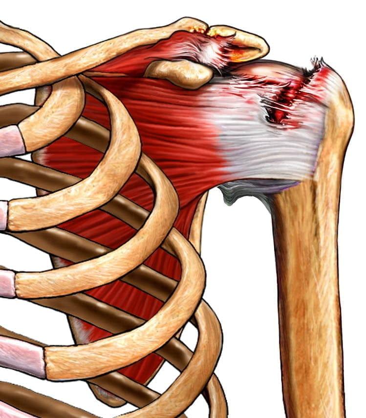Изображение - Разрыв сухожилия плечевого сустава операция отзывы 413babc3970ab59e55b1b6011b9cb0ea
