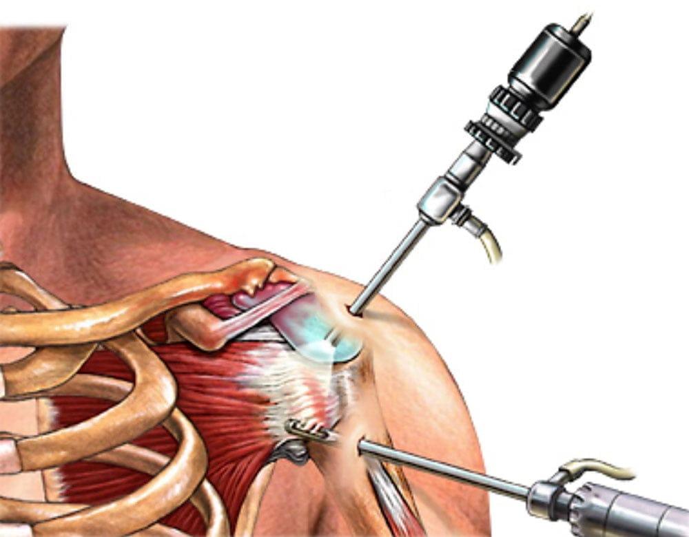 Лечение надостной мышцы