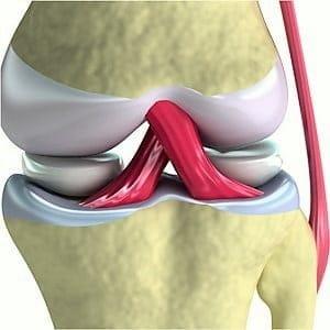 Изображение - Импланты связок коленного сустава цены 4a1a27f7845d60cc84e008a61b0b51b1