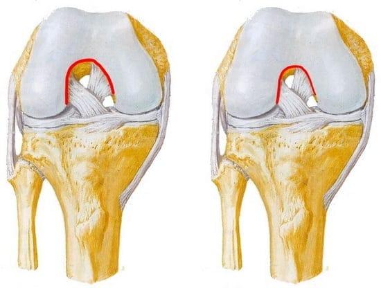 Разволокнение передней крестообразной связки коленного сустава — симптомы и лечение поражения