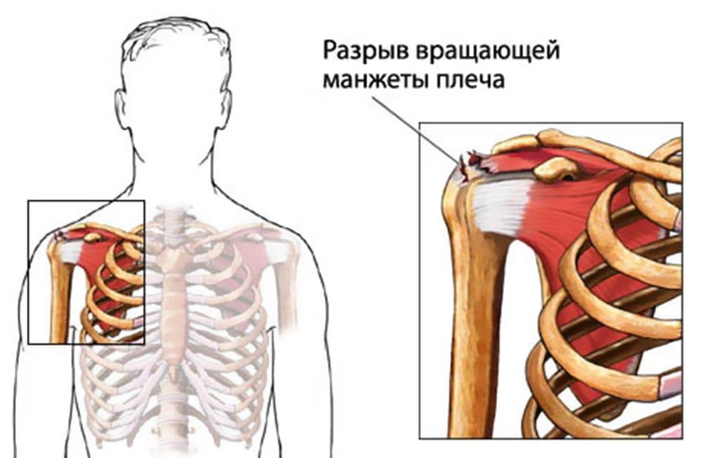 Изображение - Повреждение манжеты плечевого сустава как лечить 613aee183ff20f349fe84d326dc50bc3