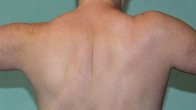 Отек мягких тканей плеча thumbnail