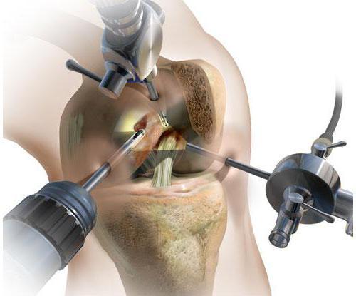 Изображение - Артроскопия мениска коленного сустава 66b95bedf1451c3e512649fb576fe3df