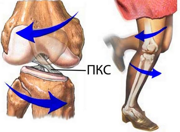 Изображение - Артроскопия передней крестообразной связки коленного сустава 76c3da4950ea0e7fc7d201cae6f641e8