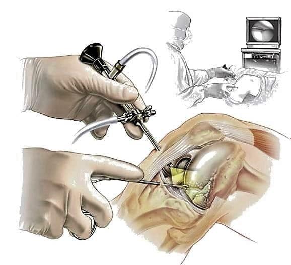 Изображение - Артроскопия передней крестообразной связки коленного сустава 7d3423d4f98a654ff53784eca9fd116c