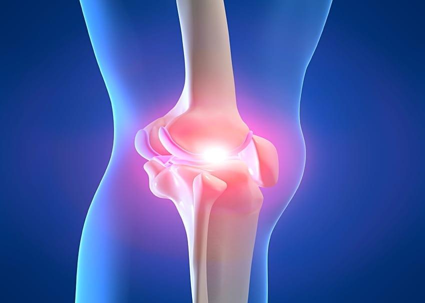 Изображение - Артроз коленного сустава операция 85c3473908705ebbd6711091ae690193