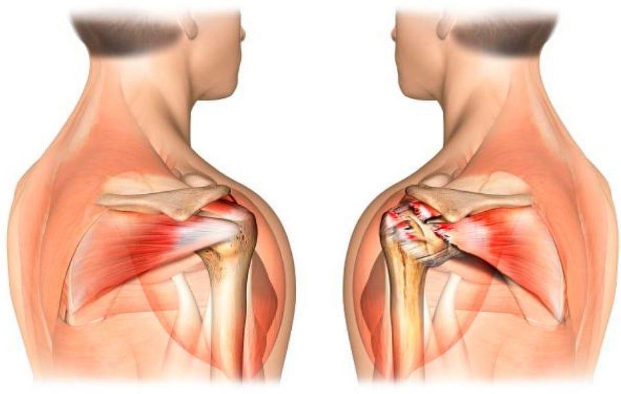 Надостная мышца плеча