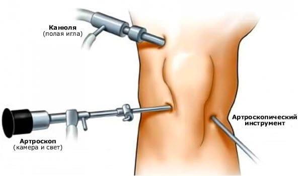 Артротерапия