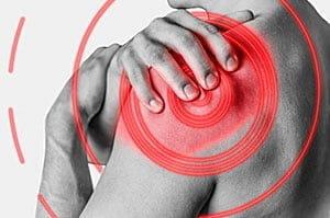Синдром сдавления ротатора плеча: диагностика, причины, импинджмент