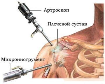 Преимущества артроскопии
