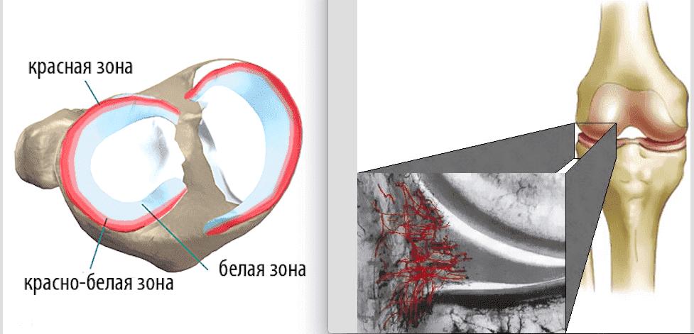 Изображение - Разрыв медиального мениска коленного сустава 3 степени cb2d4b12fcad611363e23ebb2762ac5c