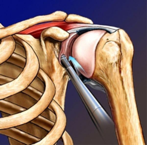 Изображение - Артроскопия плечевого сустава клиника e47128ea1cd13a44cdc509060e39ba33