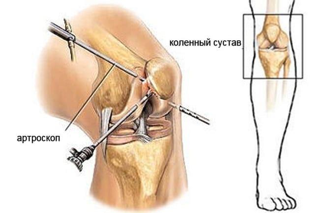 лечебно-диагностической методики артроскопия